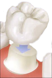 Porcelain implant - idealdentistryaz.com
